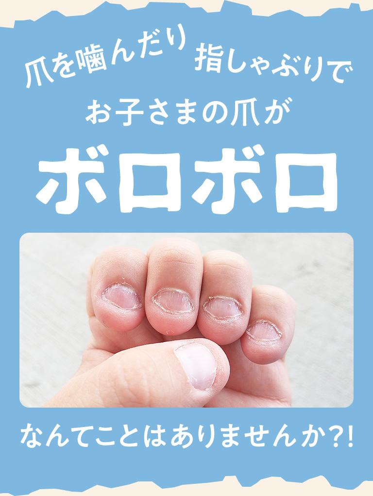 爪を噛んだり指しゃぶりでお子さまの爪がボロボロなんてことはありませんか?!